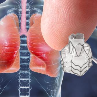Lung Valve